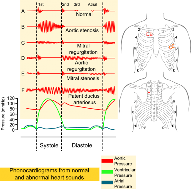 File Phonocardiograms From Normal And Abnormal Heart Sounds With