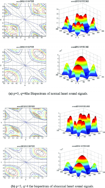 A) P = 5, Q = 4 The Bispectrum Of Normal Heart Sound Signals  (b