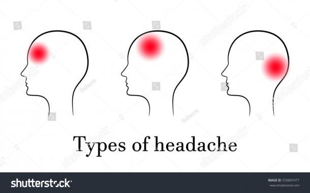 Types Headache Contour Medical Concept Stock Vector (royalty Free