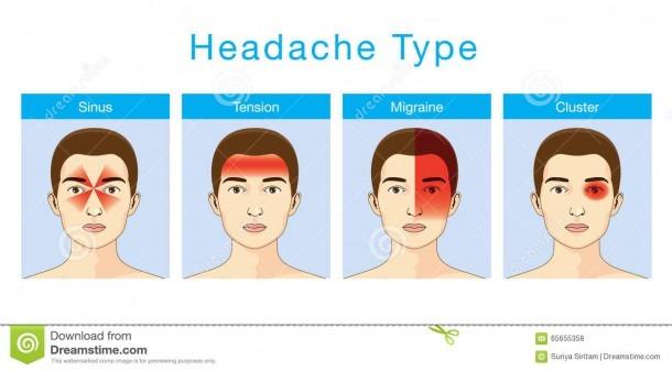 Type Of Headache Stock Vector  Illustration Of Cartoon