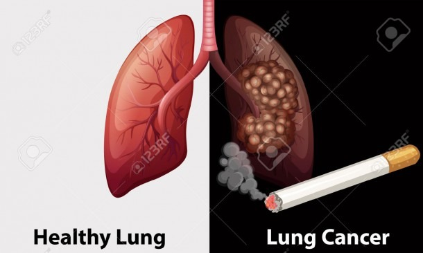 Healthy Lung Against Lung Cancer Diagram Illustration Royalty Free