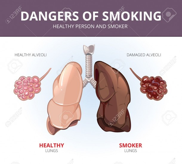 Lungs And Alveoli Of A Healthy Person And Smoker  Organ