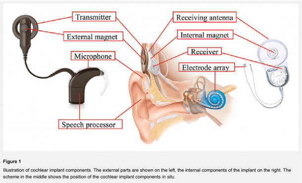 Figure 1 From Cochlear Implantation In Children And Adults In