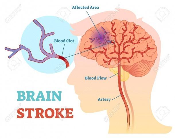 Brain Stroke Anatomical Vector Illustration Diagram, Scheme With