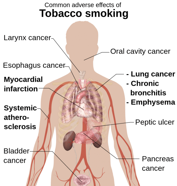 File Adverse Effects Of Tobacco Smoking Svg