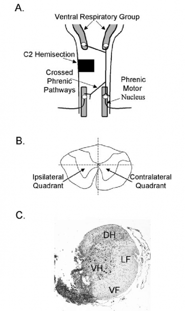 A) Diagram Of The Medulla And Cervical Spinal Cord Depicting The