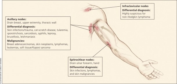 Unexplained Lymphadenopathy  Evaluation And Differential Diagnosis