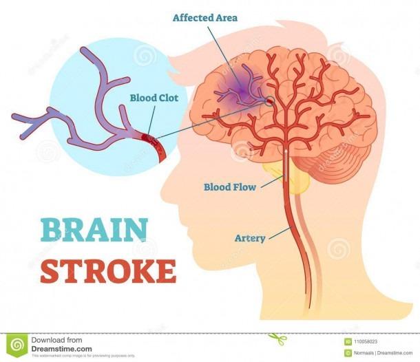 Brain Stroke Anatomical Vector Illustration Diagram, Scheme Stock
