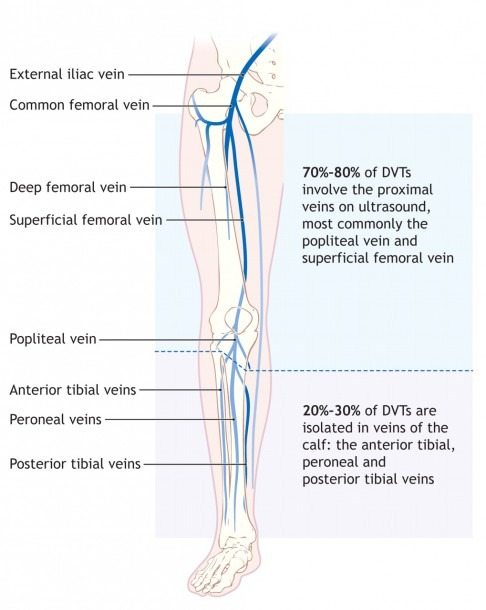 Diagnosis And Treatment Of Deep