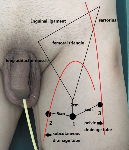 Comparison Of Efficiency Of Video Endoscopy And Open Inguinal