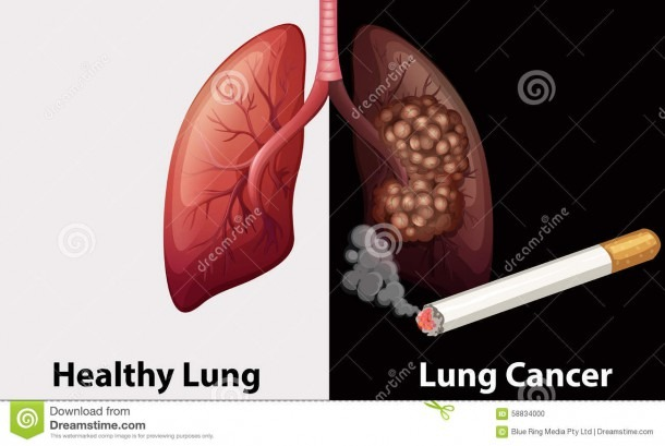 Healthy Lung Against Lung Cancer Diagram Stock Vector