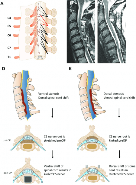 Illustration Of The Cervical Spinal Nerve Roots Exiting The Spinal