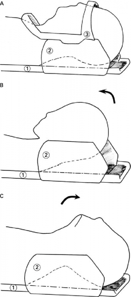 Positions Of The Cervical Spine For The Static And Dynamic Mri