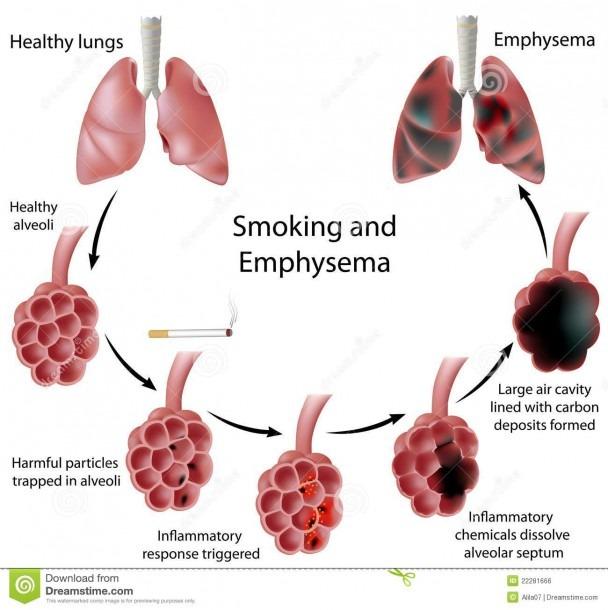 Smoking And Emphysema Stock Vector  Illustration Of Illness