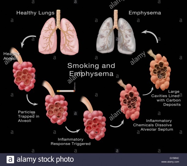 Stages Of Lung Damage Of A Smoker Leading To Emphysema  The Stock