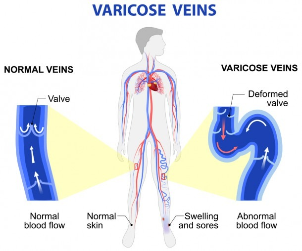 What To Expect At A Varicose Vein Screening