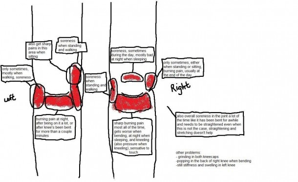 Knee Pain Diagram