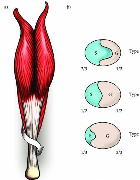 A) Posterior View Of The Right Leg  Arrow Illustrating The