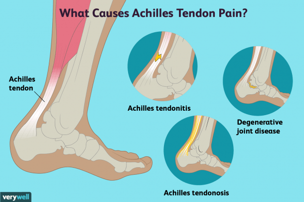 Achilles Tendon Pain  Causes, Treatment, And When To See A Doctor