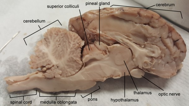 Sheep Brain – Anatomy Corner