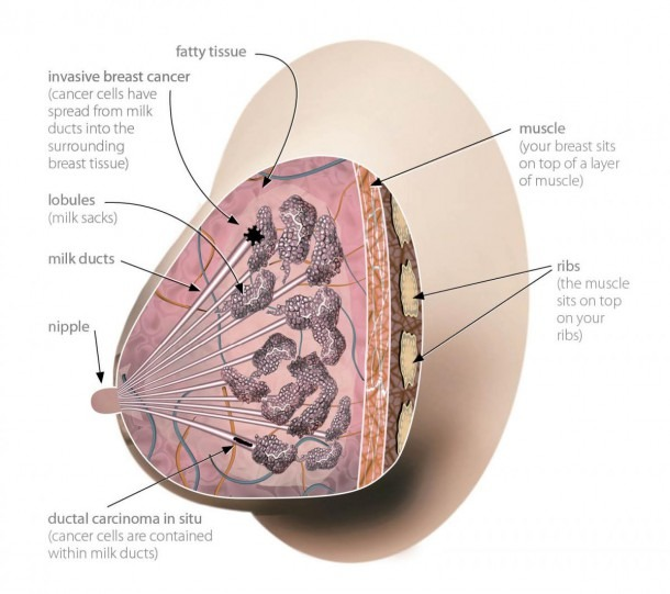 What Does A Breast Look Like On The Inside