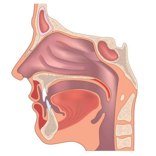 Ear, Nose, And Throat Doctor