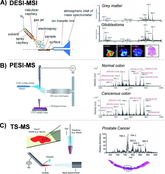 Ambient Ionization Mass Spectrometry For Cancer Diagnosis And