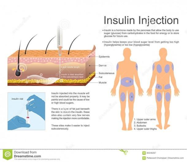 Insulin Injection  Vector, Illustration Design  Stock Vector