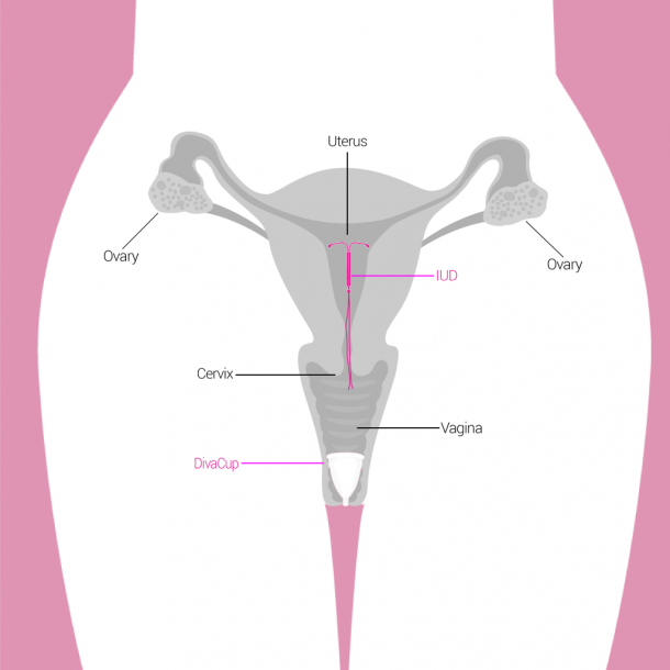 Iuds And The Divacup