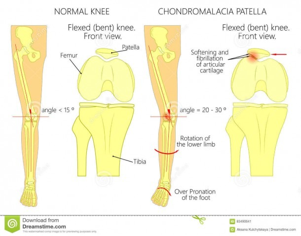 Knee Pain And Chondromalacia Patella Stock Vector