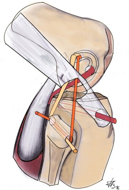 Lateral View Of The Right Knee  Diagram Showing Passage Of The