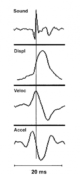 10  Peak Sound Energy Occurs In The Middle Of Displacement (muscle