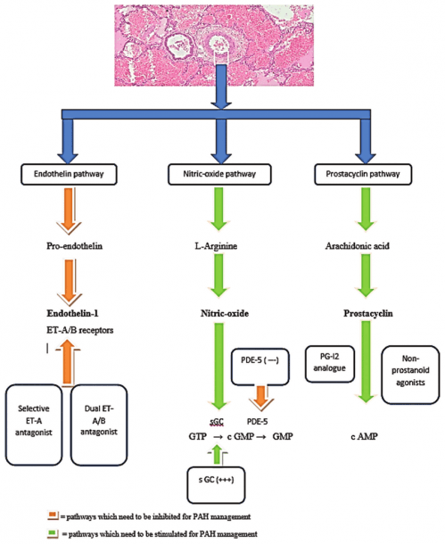 The Three Major Pathways Depicting The Pathophysiology Of The