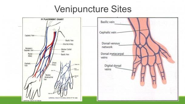 Iv Vein Diagram